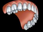 Upper Denture
